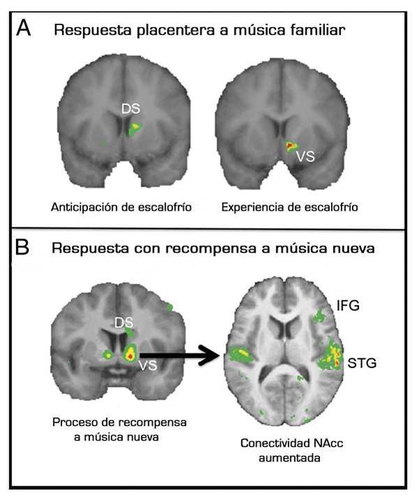 """FIGURA 3. Correlatos neuronales del procesamiento de la música altamente recompensante. (A) Análisis de conjunción espacial entre [11C] tomografía de emisión de positrones raclopride y fMRI mientras los oyentes escuchan la música placentera que eligieron reveló aumento de la actividad hemodinámica en el estrato ventral (EV) durante los momentos emotivos pico (marcados por """"escalofríos"""") y el estrato dorsal (ED) previo a los escalofríos, en las mismas regiones que mostraron liberación de dopamina. Adaptado de Komisaruk y Whipple 2005. (B) La imagen del escaneo de la RMf muestra que el mejor indicador del valor de recompensa de la música nueva (desconocida) (marcado por las ofertas monetarias a manera de subasta) fue la actividad en el cuerpo estriado, de manera particular en el NAcc; el NAcc también mostró un aumento de la conectividad funcional con el giro temporal superior (GTS) y el giro frontal inferior derecho (GFI) mientras el estímulo musical obtiene el valor de recompensa. Adaptado de Northcutt y Kaas 1995."""
