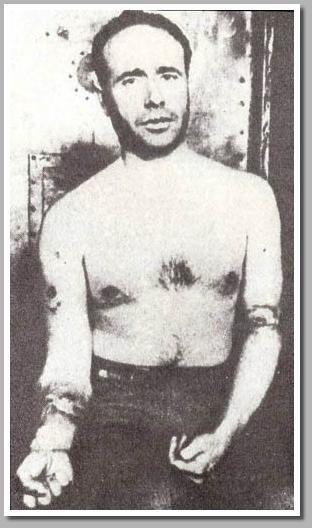 """líder socialista y director del períodico El Avance, fotografiado tras los intentos revolucionarios de Asturias de 1934. Se pueden ver los rastros de la tortura a la que fue sometido y que, tras una investigación, fue explicado por las autoridades como una afección de """"furunculosis""""..."""